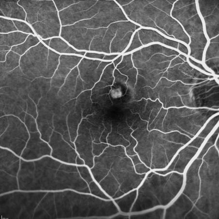 https://www.centrevision-lyon.fr/wp-content/uploads/2021/03/Angiographie-a-la-fluoresceine-neovaisseaux-maculaires.png