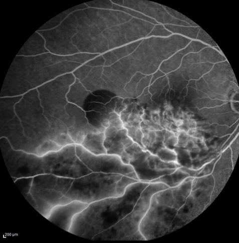https://www.centrevision-lyon.fr/wp-content/uploads/2021/03/Angiographie-a-la-fluoresceine-occlusion-de-branche-veineuse.png