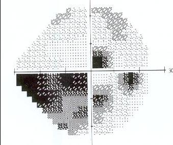 https://www.centrevision-lyon.fr/wp-content/uploads/2021/03/Atteinte-du-champ-visuel.png