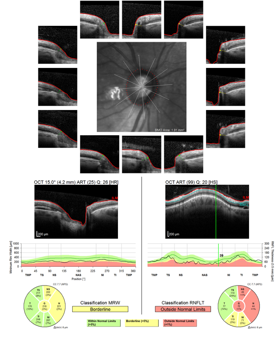 https://www.centrevision-lyon.fr/wp-content/uploads/2021/03/Tomographie-en-coherence-optqiue-analyse-de-lepaisseur-de-la-tete-du-nerf-optique-et-de-lepaisseur-des-fibres-peripapillaires.png